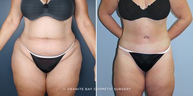 Body Contouring After Weight Loss Granite Bay Cosmetic Surgery