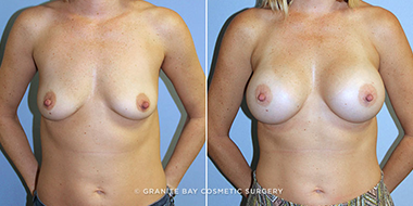 Breast Reduction Recovery What To Expect Granite Bay Cosmetic