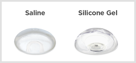 Breast Implants | Silicone Gel, Saline, Shaped Options | Granite Bay  Cosmetic Surgery