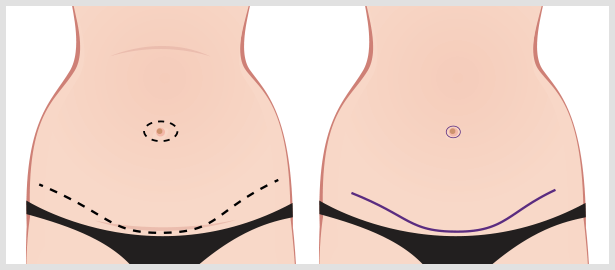 tummy-tuck-incisions