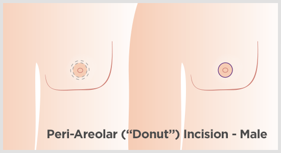 Peri-areolar incision for male breast reduction