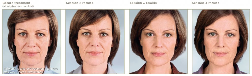 Sculptra injections in Granite Bay