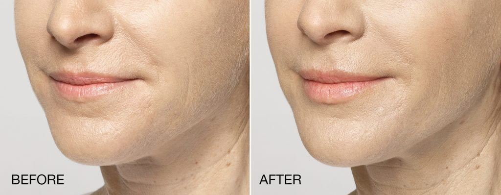 Before & after Restylane Silk injections. Photos courtesy Galderma, inc.