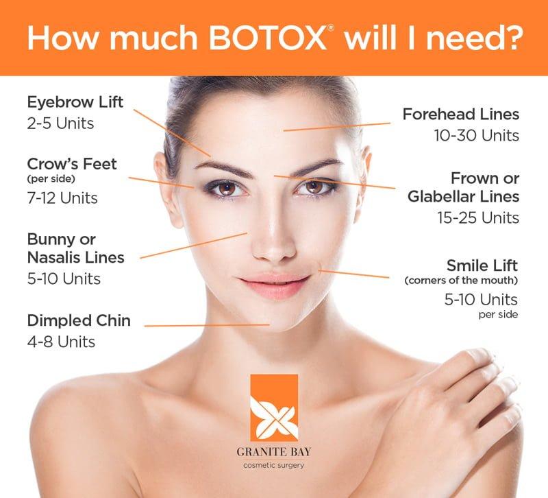 Granite Bay Botox Dysport Neuromodulator Injections