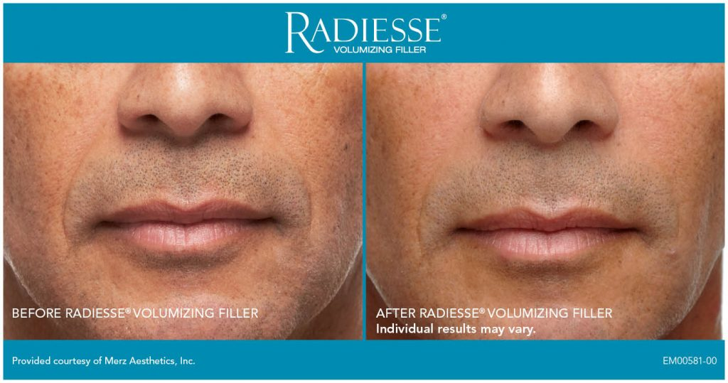 Radiesse injections in Granite Bay
