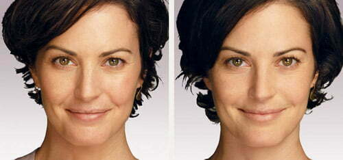 Before & after Juvederm injections. Photos courtesy Allergan, inc.