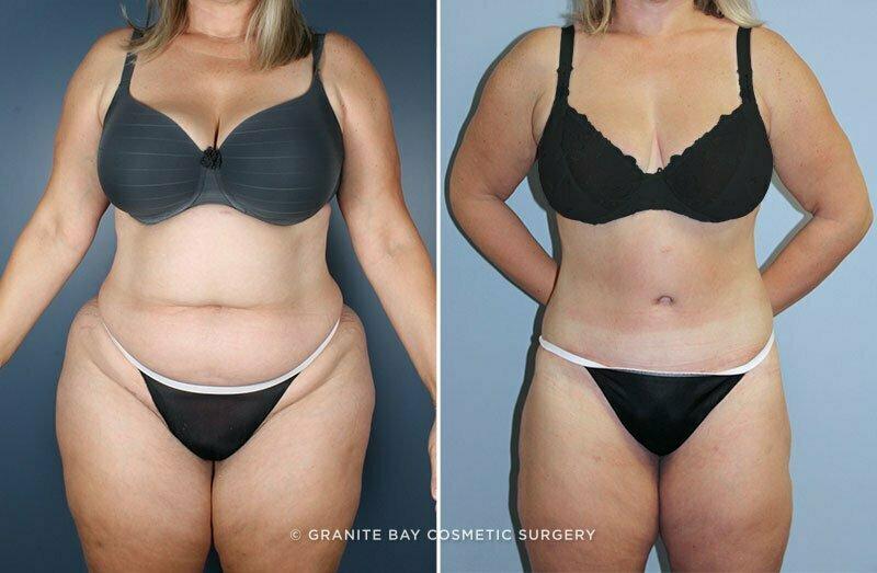 Body Lift Granite Bay Cosmetic Surgery