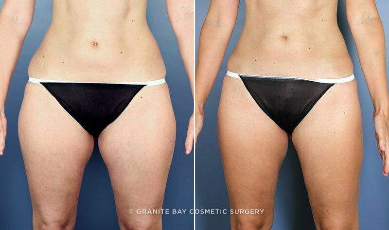 Liposuction - Granite Bay Cosmetic Surgery