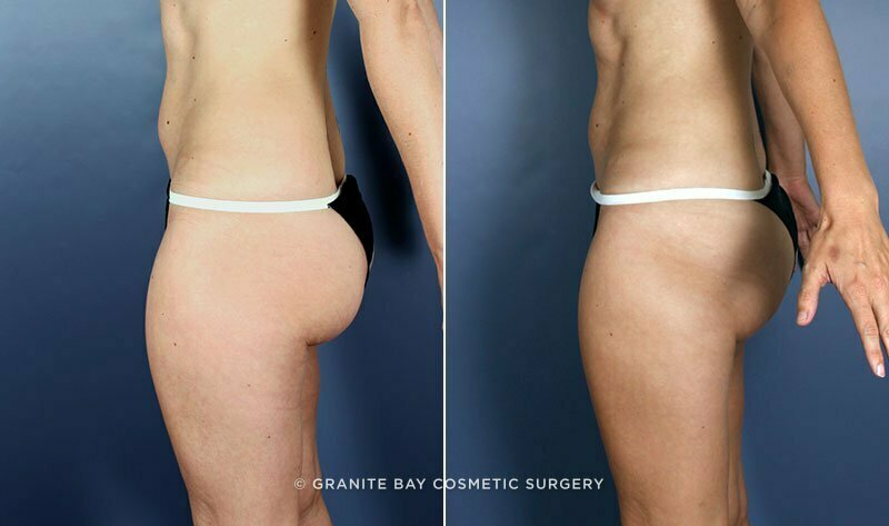 Liposuction Granite Bay Cosmetic Surgery