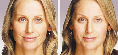 Before & after Juvéderm injections. Photos courtesy Allergan, inc.