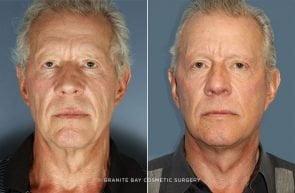 Facelift, Neck lift, Upper Eyelids, & Fat Transfer