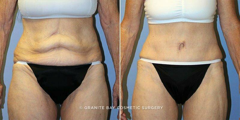 Tummy Tuck Granite Bay Cosmetic Surgery