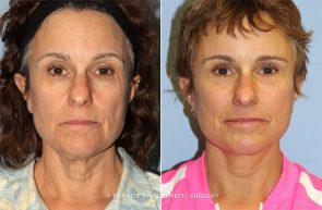 Facelift, Upper and Lower Eyelids