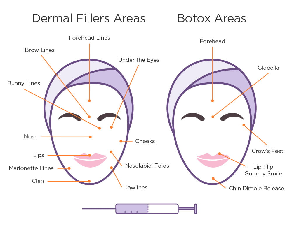 Where Botox Fillers Are Administered