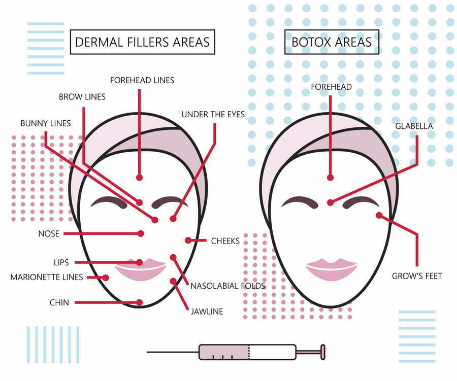 BOTOX, Juvéderm, Restylane, Oh My! Which Injectable is Right