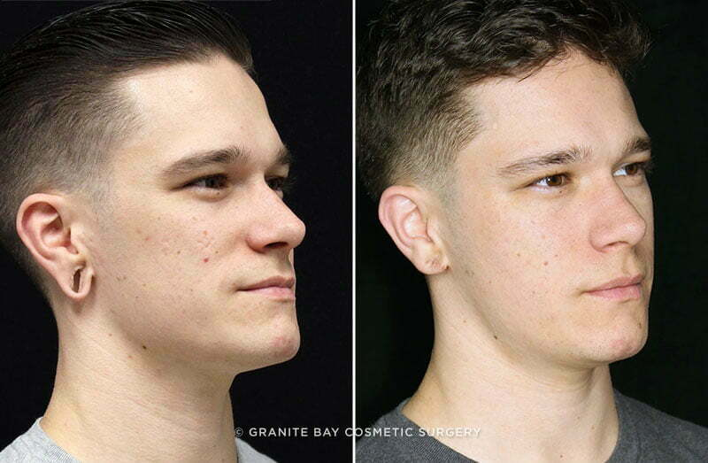Earlobe Repair Granite Bay Cosmetic Surgery