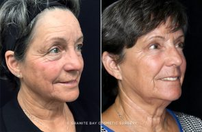 Blepharoplasty Amp Microneedling Granite Bay Cosmetic Surgery