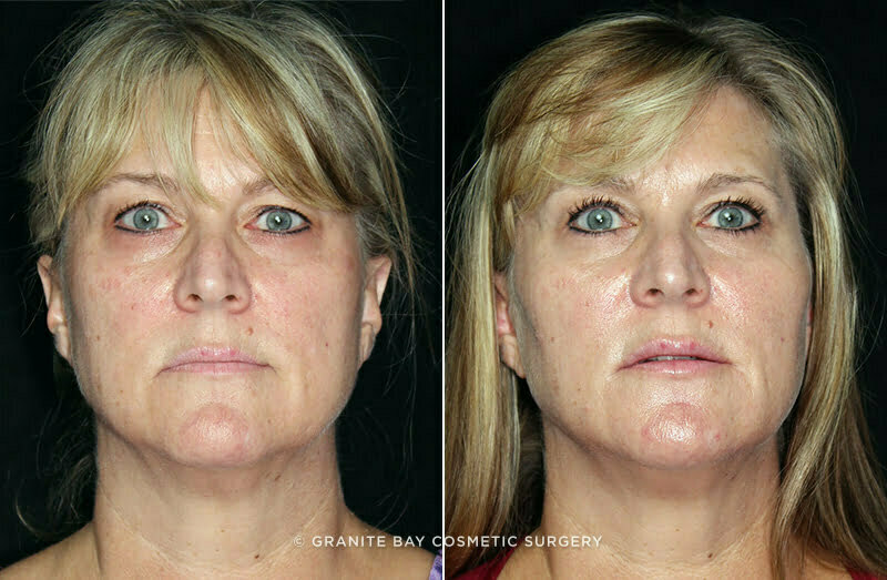 Belotero Balance Amp Radiesse 1 Granite Bay Cosmetic Surgery