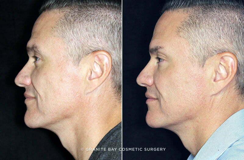 Facial Fillers Granite Bay Cosmetic Surgery