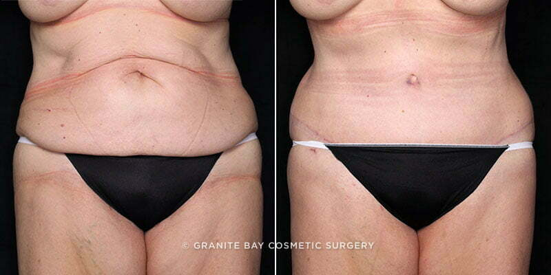 Supplies For Lipo And Tummy Tuck After Surgery: Tummy Tuck