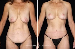Breast Lift, Tummy Tuck, Body Lift, & Thigh Lift