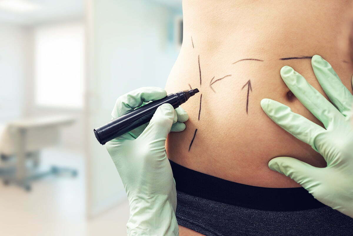 2019 plastic surgery statistics from ASPS show breast augmentation liposuction are still popular