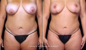 Liposuction anterior flanks, abdominoplasty scar revision