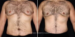 Male Breast Reduction and Tummy Tuck
