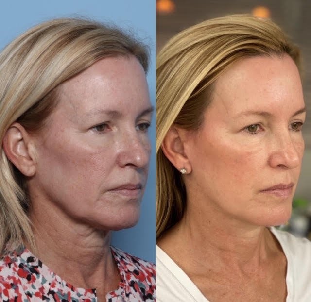 granite bay cosmetic surgery facelift patient before after