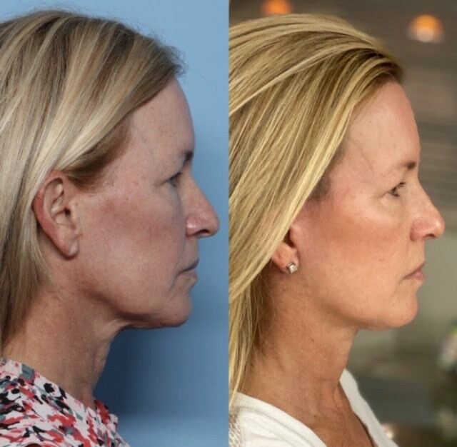 granite bay cosmetic surgery facelift patient before after side view