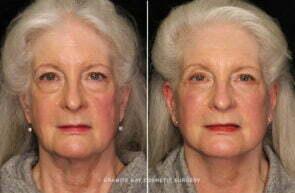 Facelift, multi procedure