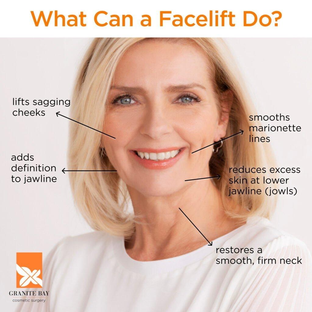 Granite Bay Cosmetic Surgery Facelift