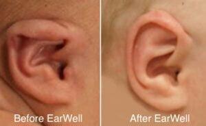 EarWell Ear Molding